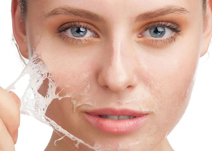 Claves para reiniciar la piel